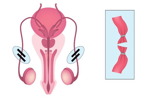 Na vasectomia, ocorre o corte dos vasos deferentes.