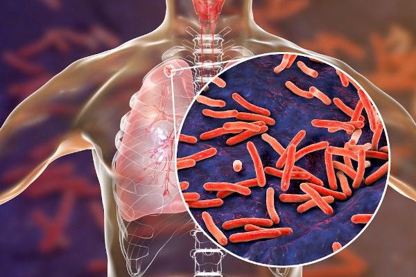 A tuberculose é uma doença causada por um bacilo que acomete, principalmente, os pulmões.
