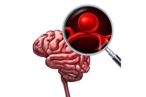 O aneurisma cerebral ocorre mais na forma de aneurisma sacular.