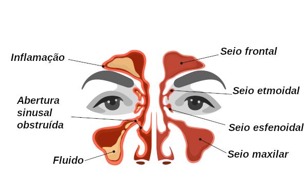 Na sinusite observa-se a inflamação dos seios da face.