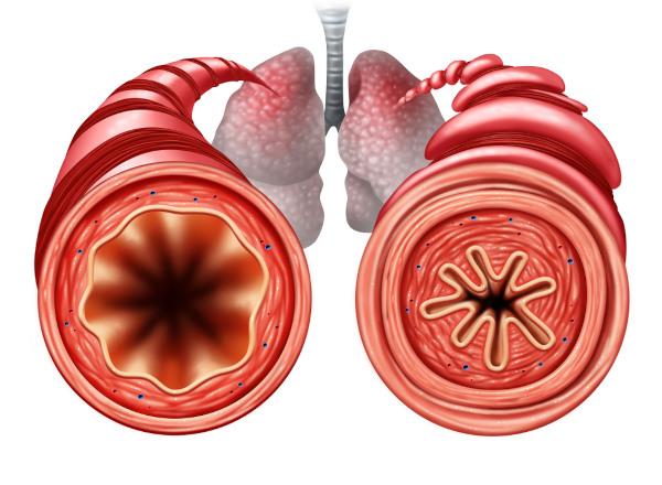Na asma observa-se a contração das vias aéreas, o que compromete a respiração do indivíduo.