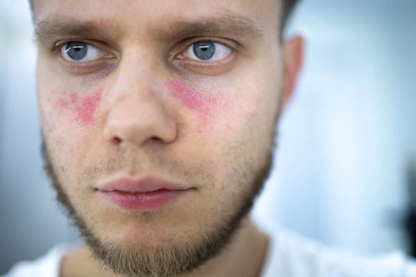 Manchas na pele surgem em cerca de 80% dos casos de lúpus.
