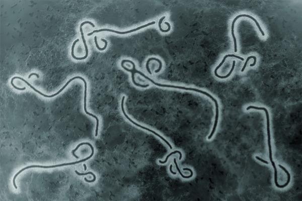 O vírus Ebola é responsável por provocar uma doença grave e altamente letal.