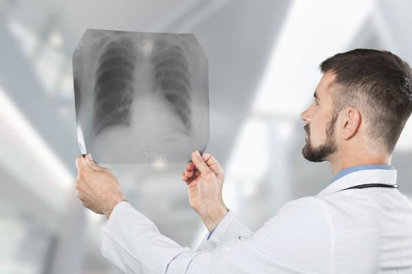 A produção de um muco mais espesso afeta diretamente o funcionamento adequado do pulmão.