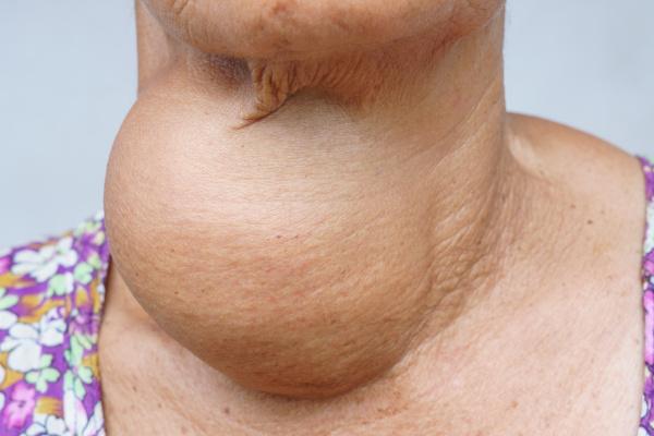 O aumento do volume da tireoide caracteriza o bócio.