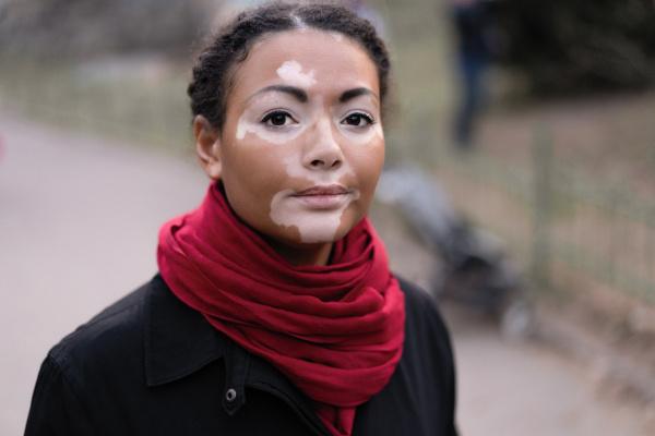 O vitiligo caracteriza-se pelo surgimento de lesões cutâneas de hipopigmentação.