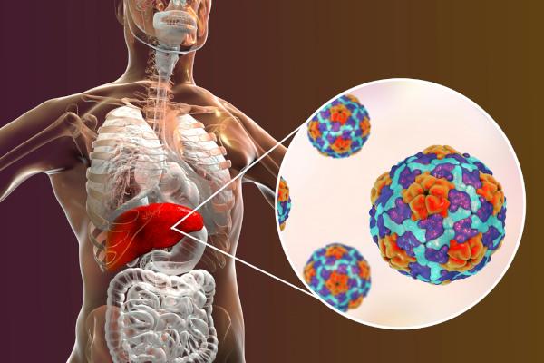 As hepatites virais são doenças que acometem o fígado.