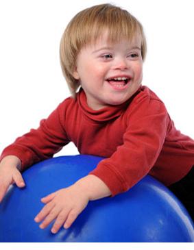 A síndrome de Down é um distúrbio genético