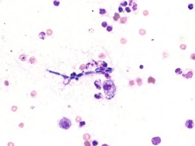 Candida albicans: fungo responsável pela candidíase