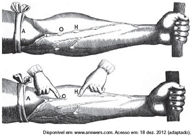 Observe a ilustração do experimento de Harvey
