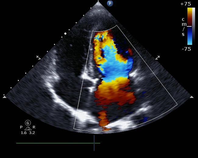 No ecocardiograma com Doppler, captam-se as ondas sonoras refletidas pelo sangue, que se afasta ou se aproxima da fonte de ultrassom.