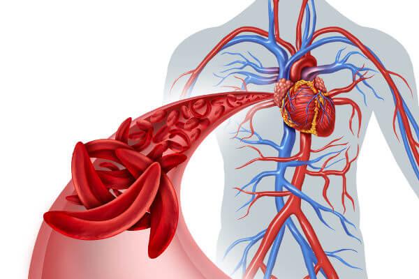 Na anemia falciforme as hemácias apresentam uma forma de foice.