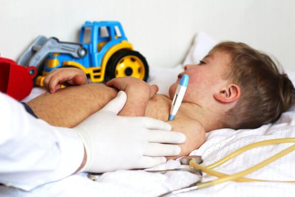 O sarampo causa, entre outros sintomas, febre e manchas no corpo.