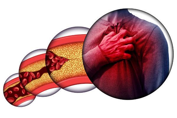 A aterosclerose pode ser responsável por desencadear problemas cardíacos, como infartos do miocárdio.