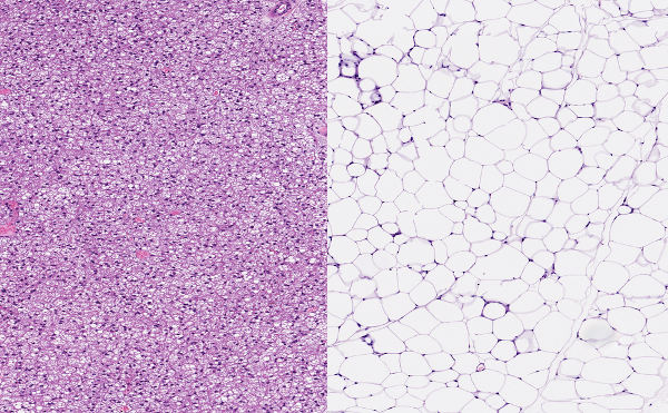 À esquerda, é possível observar o tecido adiposo multilocular, enquanto, à direita, está presente o tecido adiposo unilocular.
